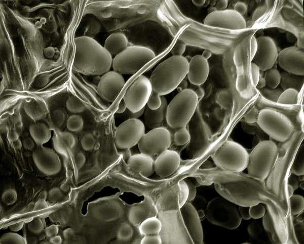 Bientôt moins de protéines dans nos céréales ?