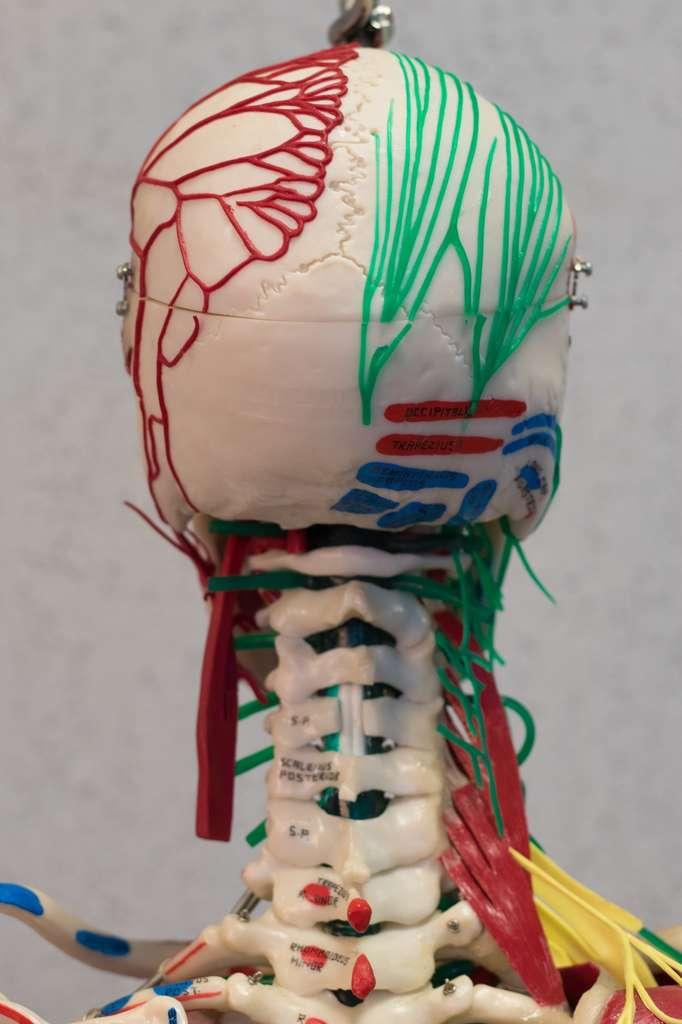 Greffe de tête humaine : ils l'ont fait sur des cadavres