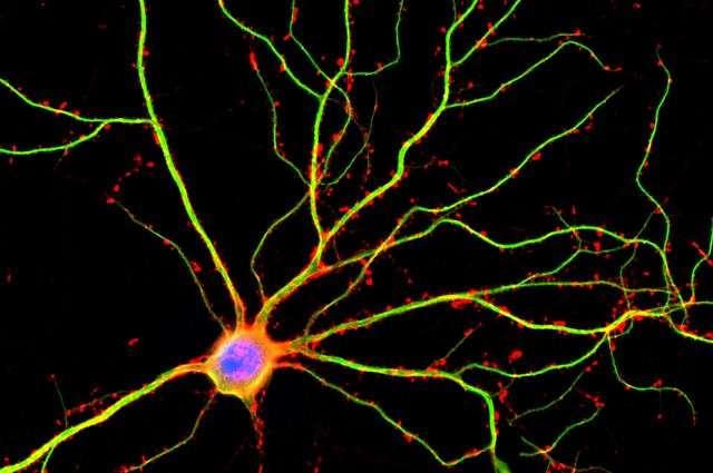 Le cerveau serait dix fois plus actif que ce que l'on pensait