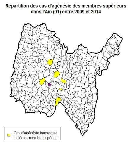 Enfants nés sans main ou bras : des malformations inexpliquées d'après Santé publique France