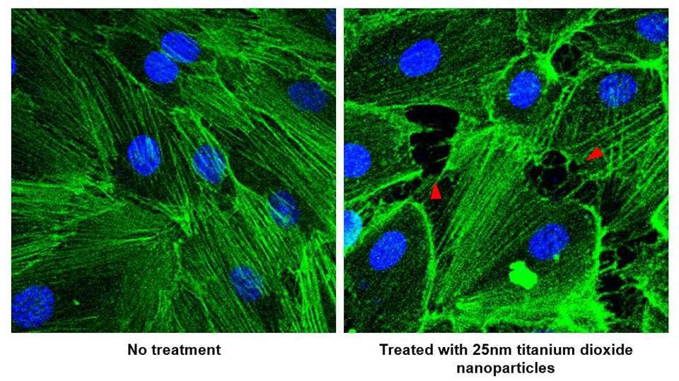 Cancer : les nanoparticules favorisent-elles les métastases ?